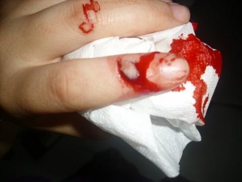 Finger Was Geschnitten Tun In Den