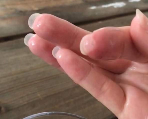 HeißKleber auf Fingerspitze, wie schlimm?