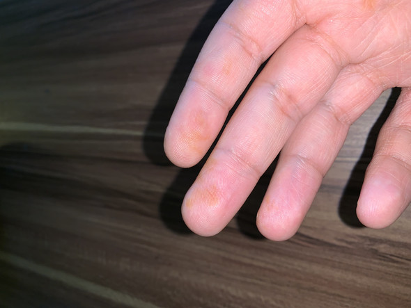 Flecken handfläche braune Ursachen brauner