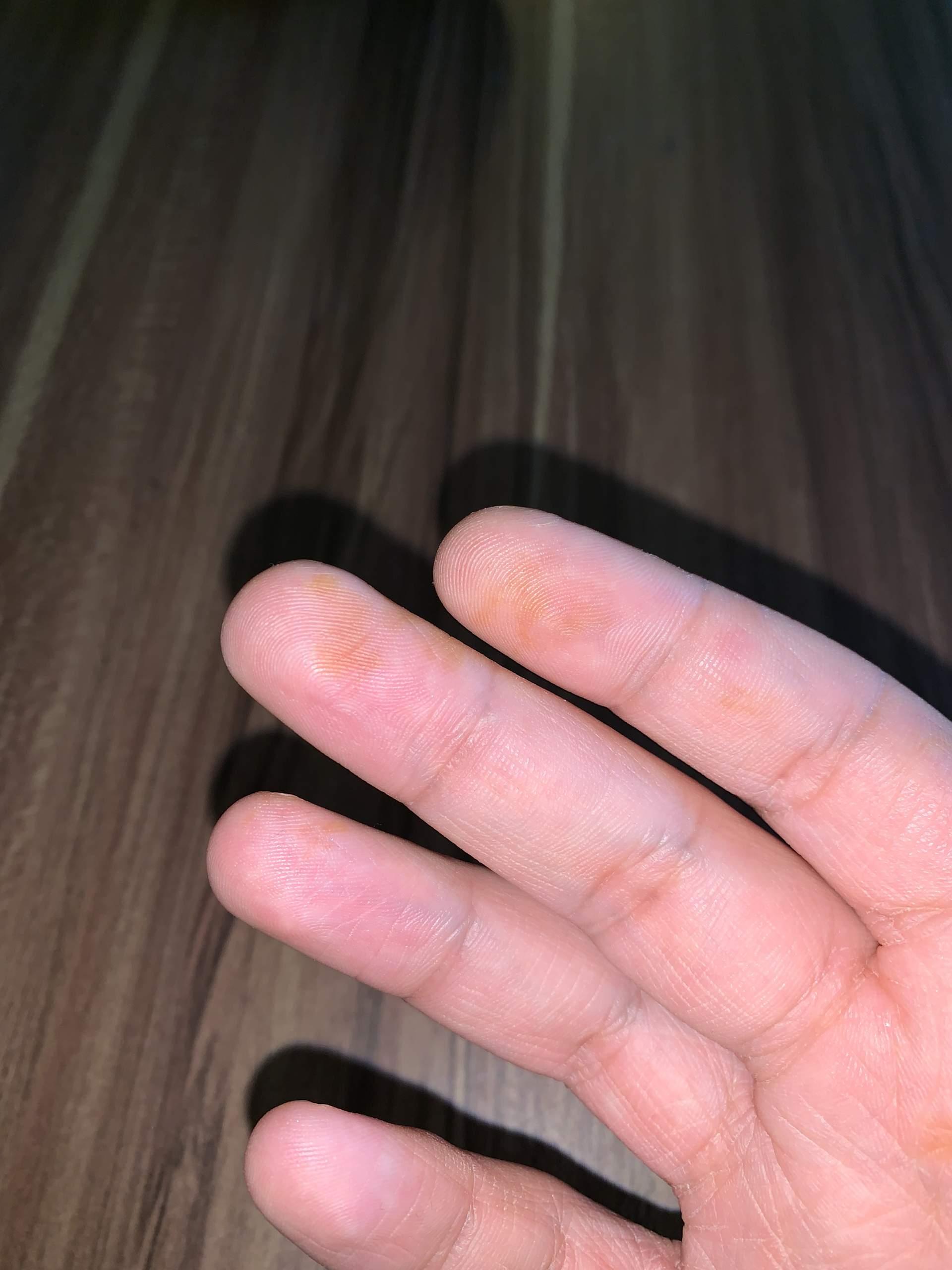 Ringfinger juckt bedeutung linker Sensibilitätsstörungen: Ursachen