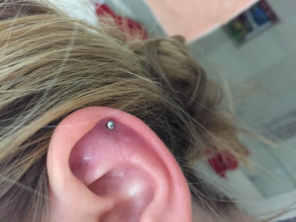 Helix- nach 7. Woche ist das Ohr immer noch rot?