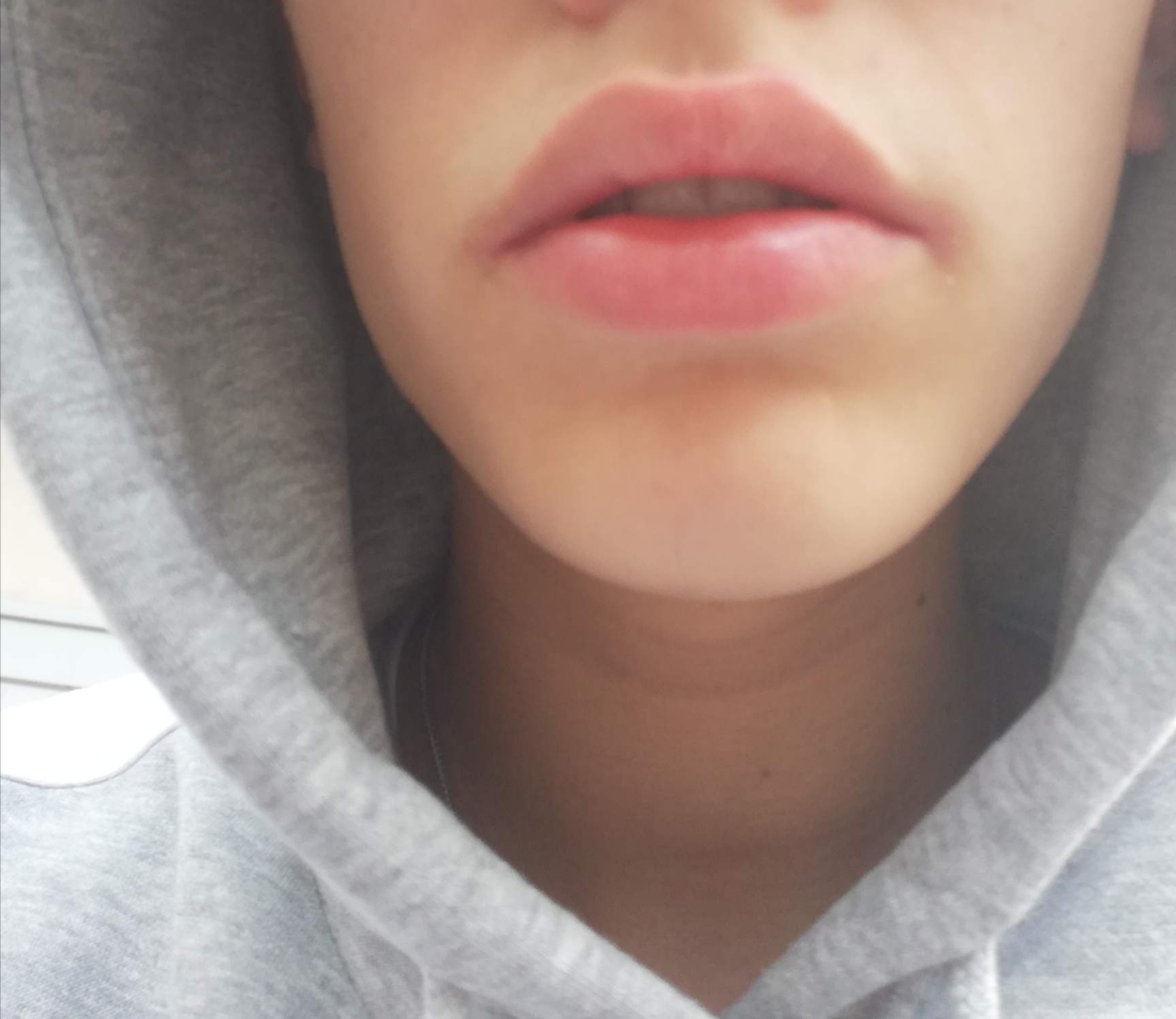Mundwinkel fressecken Aufgerissene Mundwinkel