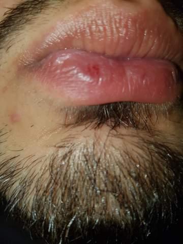 Herpes wunde geht nicht weg
