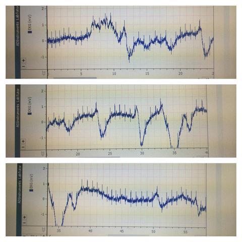 Von oben nach unten: Beginn, Flattern, Normalisierung - (Medizin, Ekg, Herz-Kreislauf)