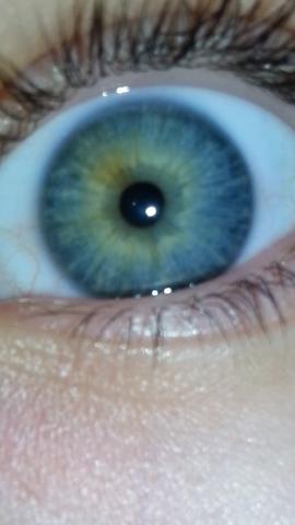 - (Augen, Farbe, heterochromie)