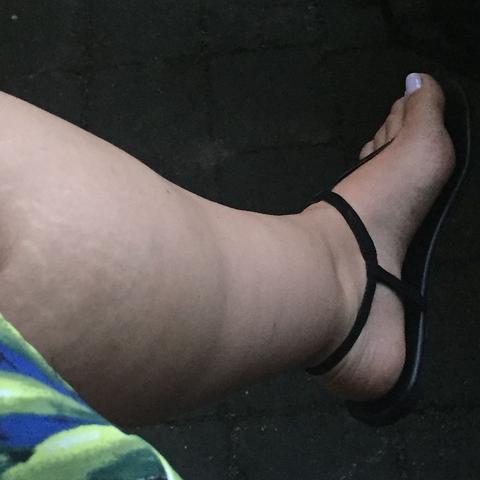 Hilfe Dicke Beine Trotz Schlanker Figur Sport Abnehmen Dick