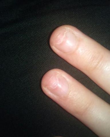 hilfe :( meine nägel schmerzen (kaputt, nagelbett)