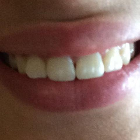 Tun zahnlücke vorne gegen was Zahnlücke schließen: