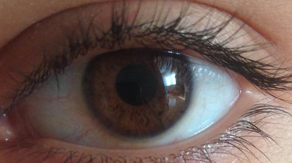Links ausenrum gelb von meinem Auge  - (Augen, Gesundheit und Medizin, gelb)