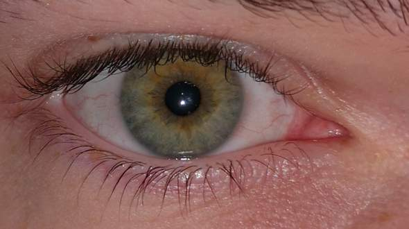 - (Augen, Farbe, Licht)