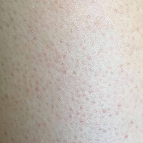 So sehen meine kompletten Beine aus :( mal stärker mal schwächer  - (Haut, Beine)