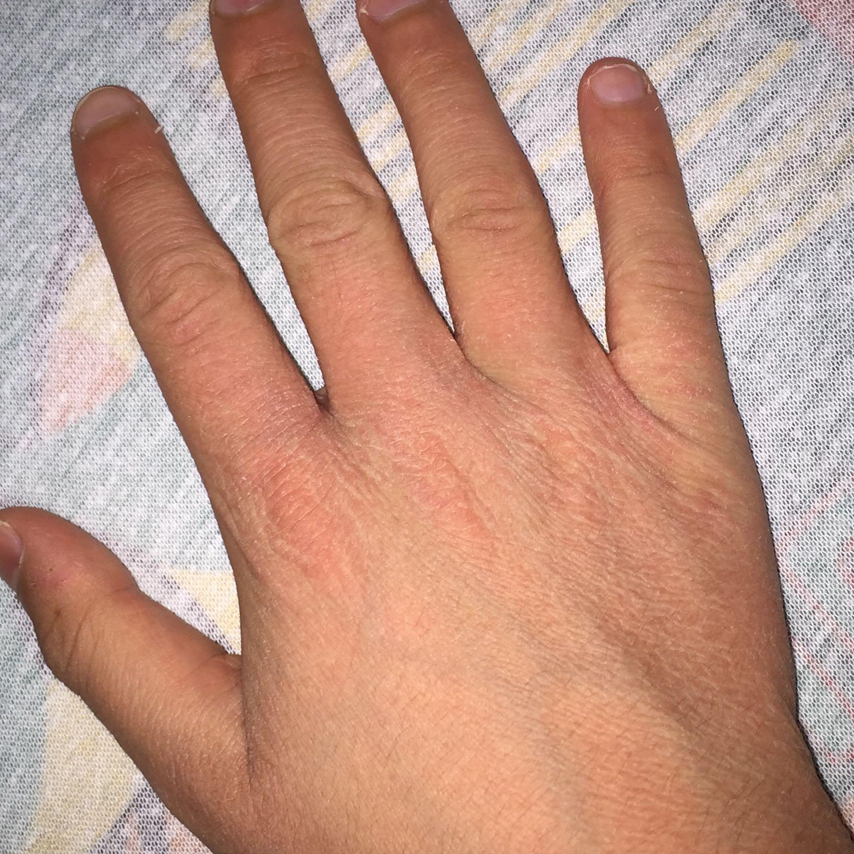 Hilfe estrem trockene Hände und es geht einfach nicht weg