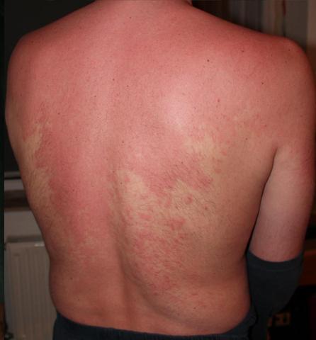 HILFE! Extremer Hautausschlag (Bilder im Anhang) Was könnte das sein ...