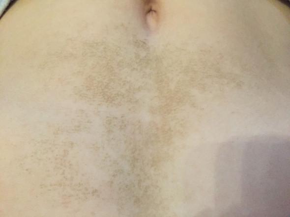Gefleckter Bauch - (Haut, Bauch, Flecken)