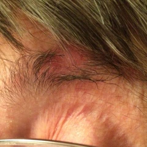 Hilfe, gereizte Haut an den Augenbrauen :/?