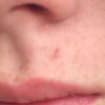 Die grosse über der Lippe  - (Wunde, Sommersprossen, Verheilen)