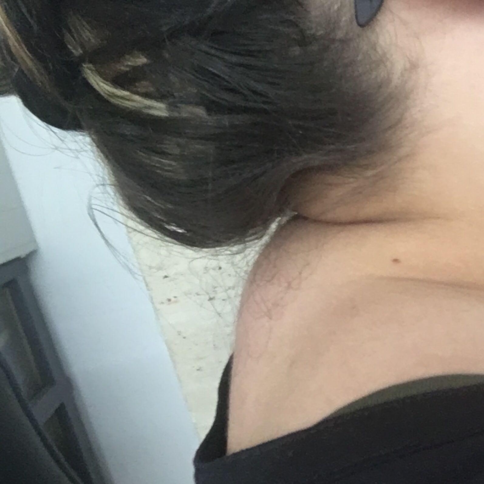 Es tut die Haut des Rückens auf dem Gebiet der Schulterblätter weh