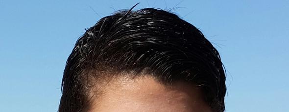 Haar - (Haarausfall, 15 Jahre alt)