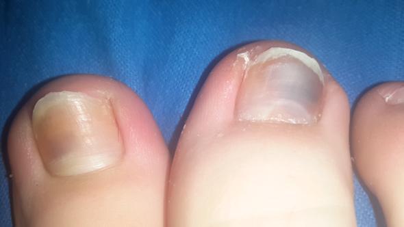 Fuß bruder - (Gesundheit, Körper, Füße)