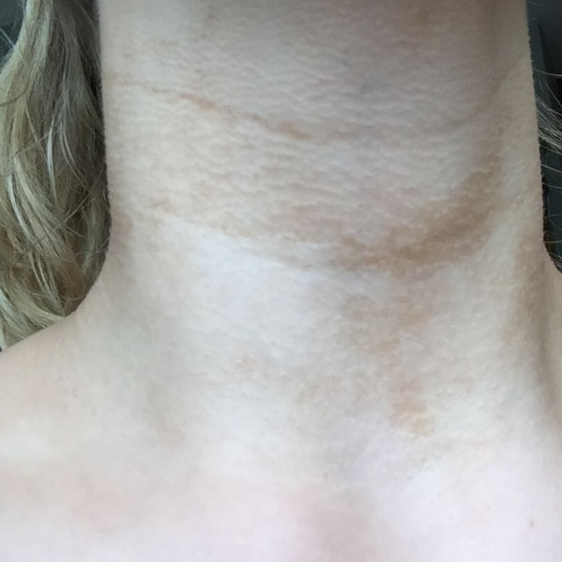 Flecken Am Hals