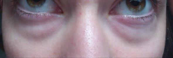 Tränensäcke - (Krankheit, tränensäcke, Geschwollene Augen)