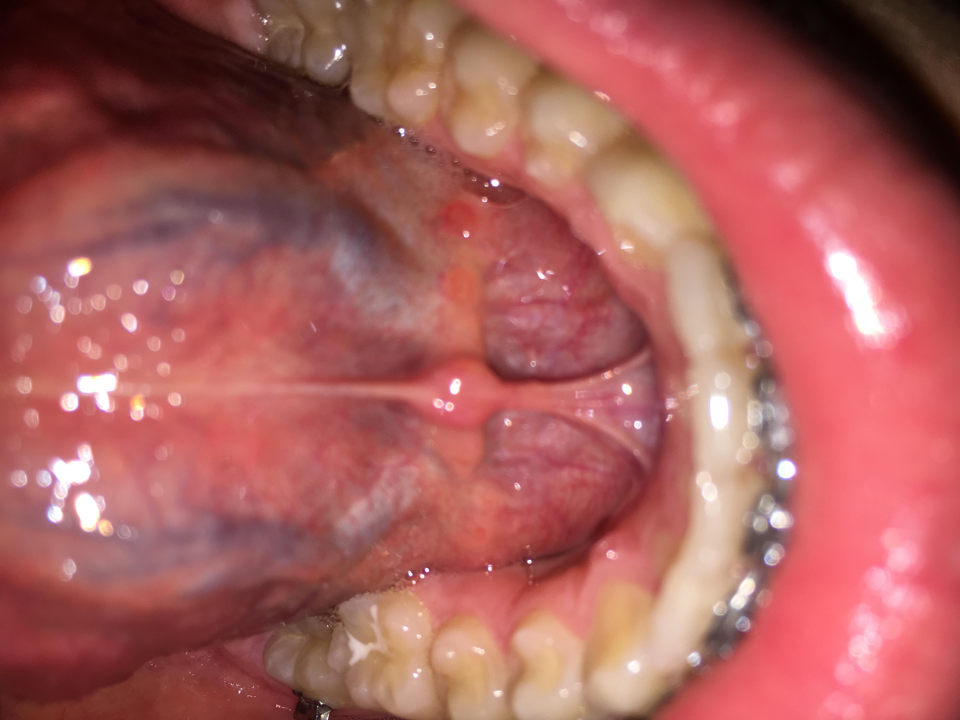 Ausgezeichnet Unterseite Der Zunge Anatomie Ideen - Anatomie Von ...