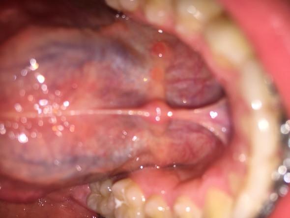Hilfe!! Knubbel unter der Zunge? (Gesundheit, Mund)