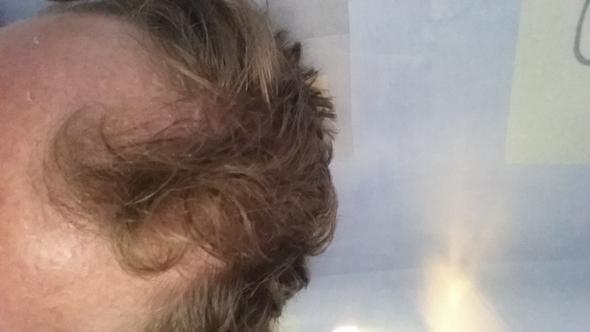 Geheimratsecken glatze