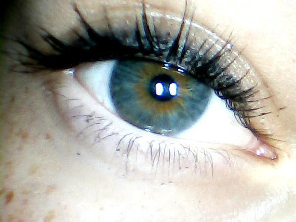 hilfe oranger ring um der pupille herum gesundheit orange normal. Black Bedroom Furniture Sets. Home Design Ideas