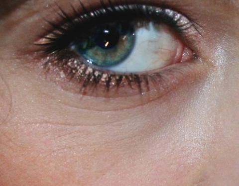 Falten An Den Augen