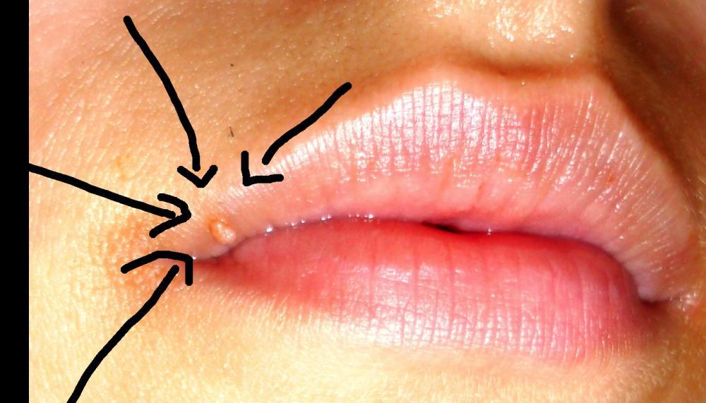 Bläschen Lippe