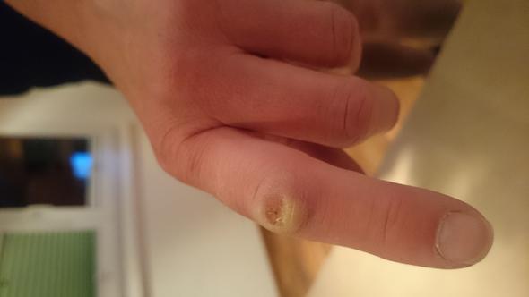finger 2 - (Krankheit, Garten, EntzÜndung)