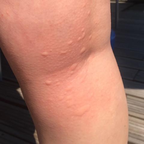 So komische Punkte sind an meinen Beinen  - (Gesundheit, Körper, Beine)