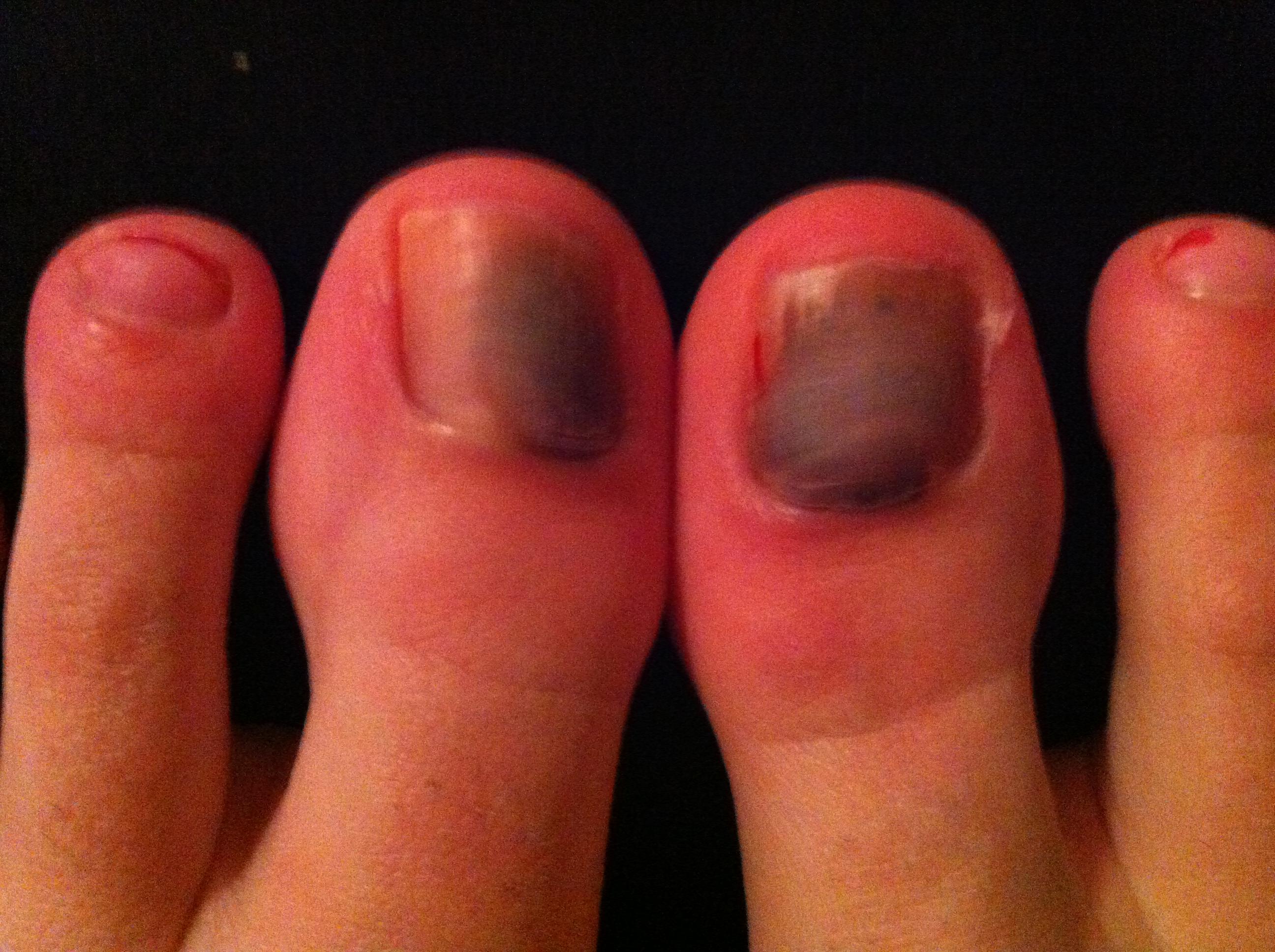 Hilfe was ist das?Krankheit?verfärbter Fußnagel