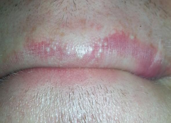 Weiße Punkte Lippen