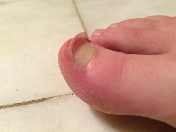 Zehnagel - (Zeh, Zehnagel, nagel umgeknickt)