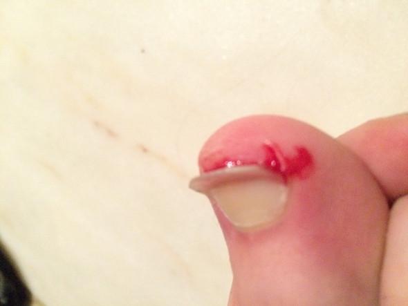 umgeknickter nagel - (Zeh, Zehnagel, nagel umgeknickt)