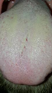 hier meine zunge, morgens nach dem aufstehen - (Arzt, Krankheit, Hygiene)