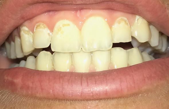 So sehen meine Zähne aus..  - (Zähne, Zahnarzt)