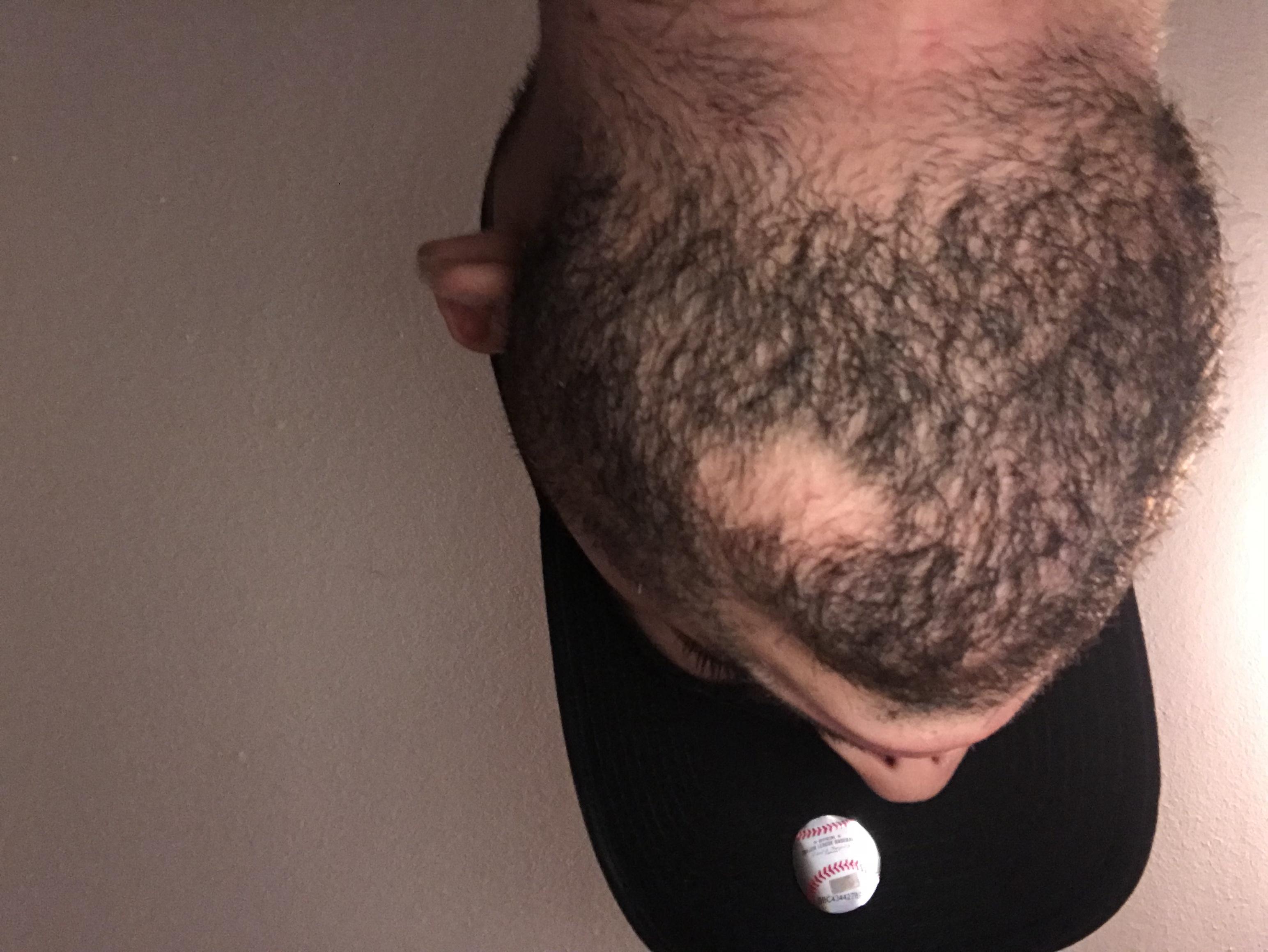 Hilfe!Kahle Stelle im Bart? (Haarausfall, Bartwuchs, Kahle