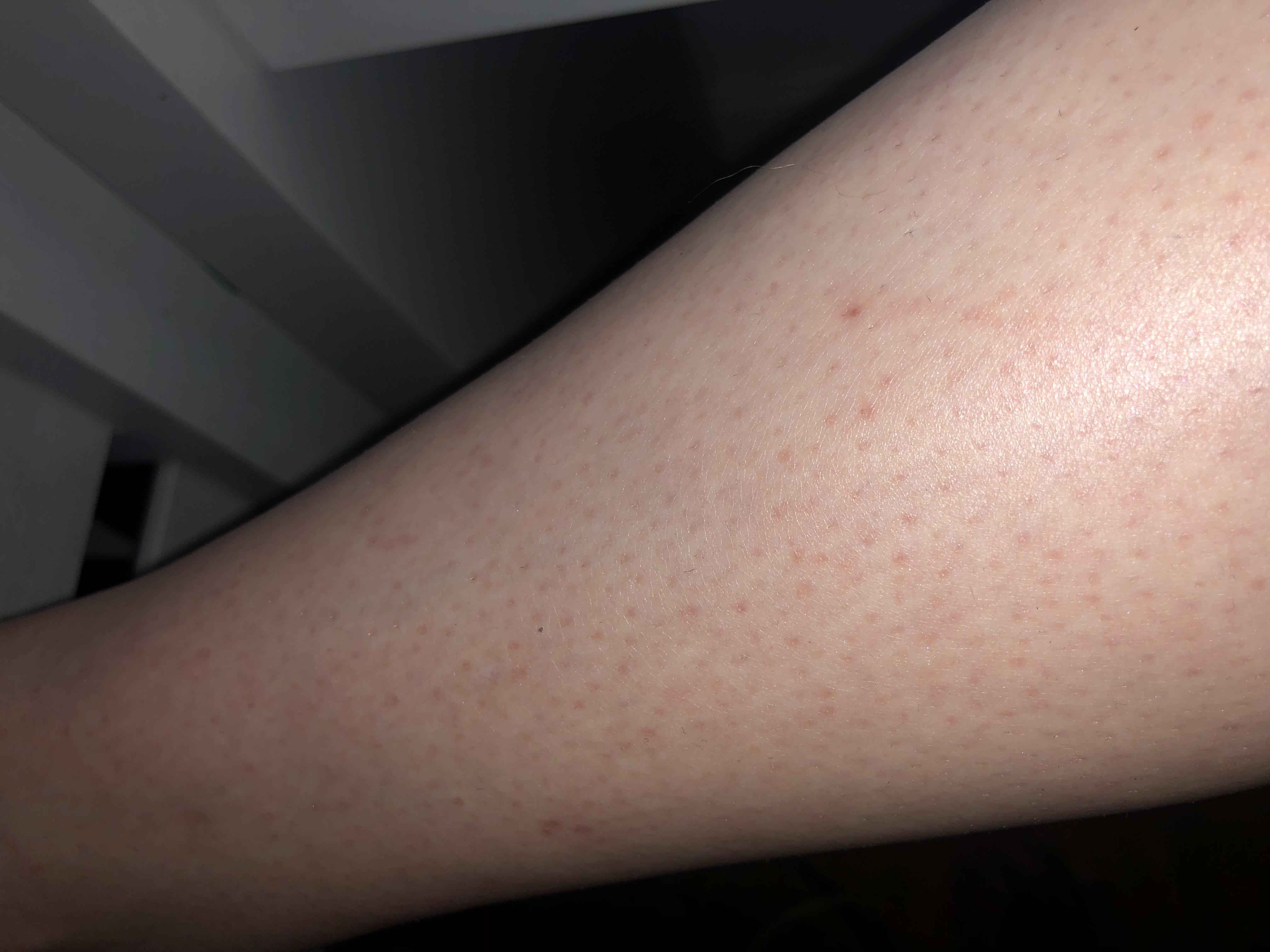 Hilfe!Rote Punkte an den Beinen? (Gesundheit und Medizin