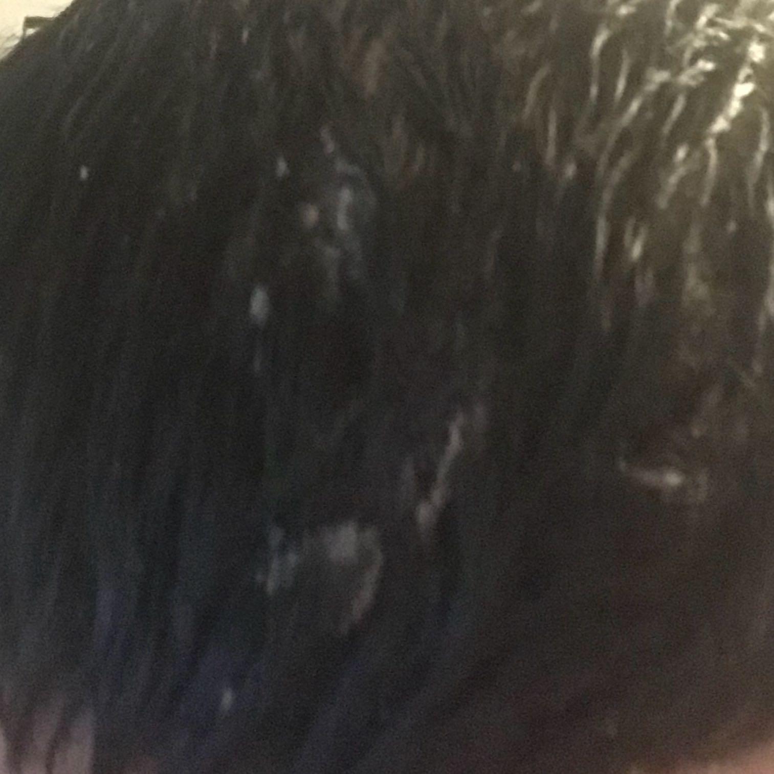 Hilft Eine Glatze Gegen Schuppenflechte Gesundheit Und Medizin