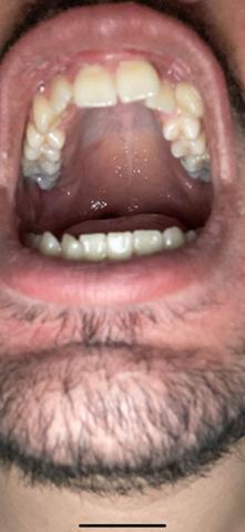 Hintere Zähne blau und Gaumen?