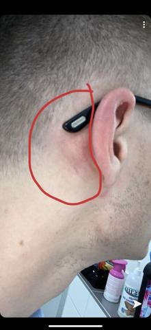 Hinterm Ohr Knubbel nur links? (Gesundheit und Medizin, Angst)