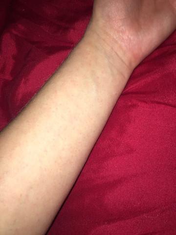 Unterarm - (Gesundheit und Medizin, Haut, krank)