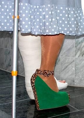 hohe Schuhe für Gehgipsbein - (Gips, krücken, Gehgips)