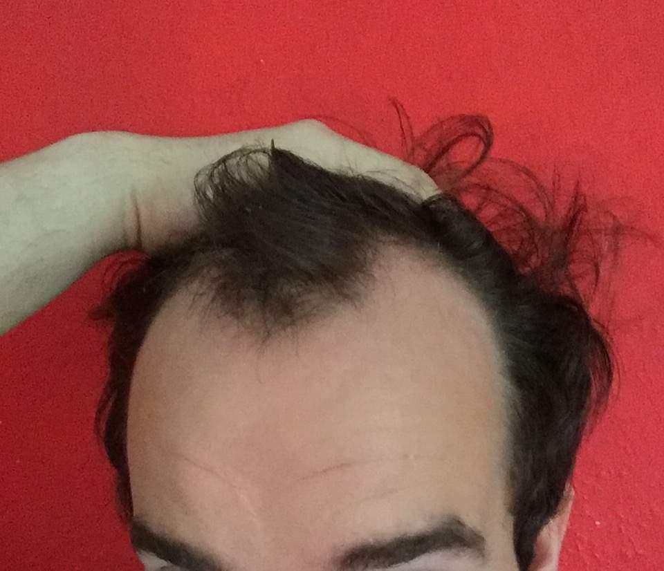 Geheimratsecken frisur Lange Haare