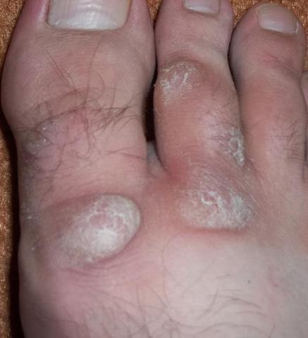 Fuß - (Haut, Füße, Zeh)