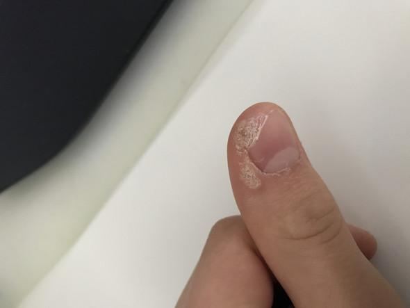 Hornhaut An Den Fingernägeln