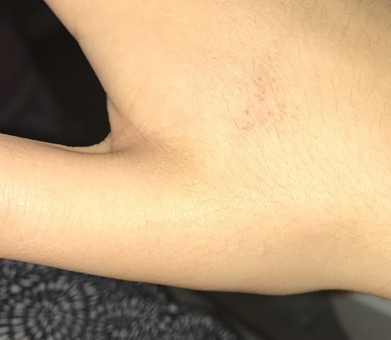 ( Hand )  - (Körper, rot, Punkte)